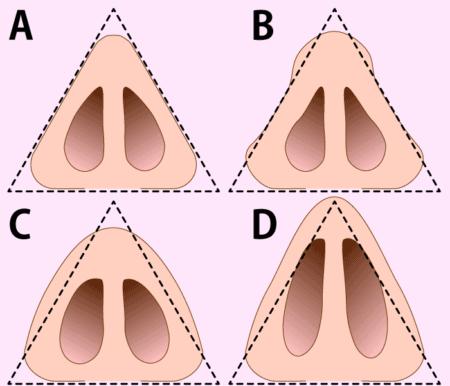 鼻を下から見るときの形も、美鼻の条件
