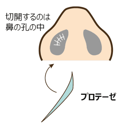 プロテーゼ手術のイメージ
