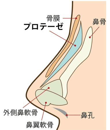 プロテーゼを入れた鼻の構造