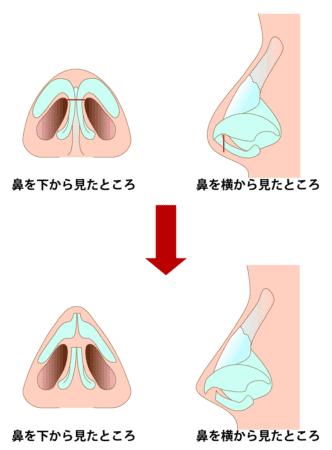 鼻軟骨移植