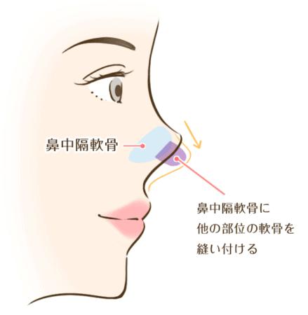 鼻中隔延長術のイメージ