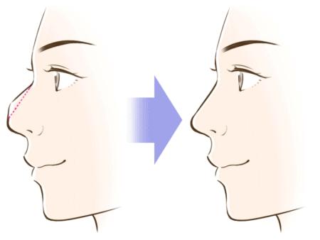 ワシ鼻修正イメージ