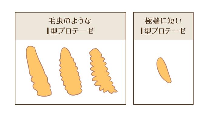 プロテーゼの種類