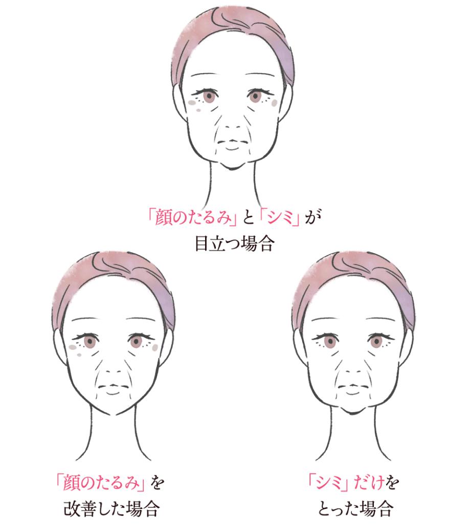 クマ・しわイメージ図4