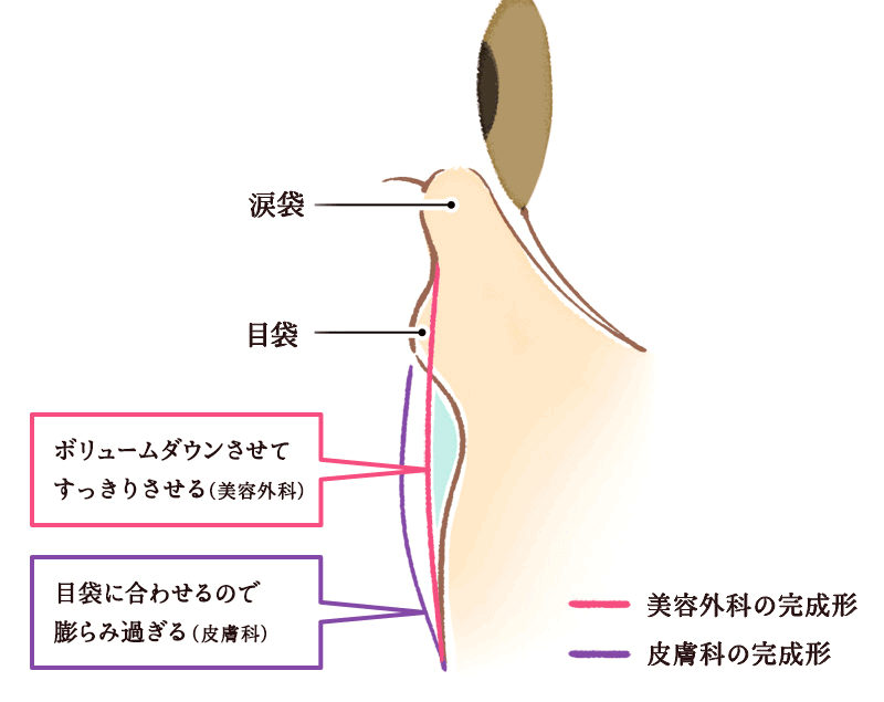 (図2)クマの改善方法は皮膚科と美容外科では違う