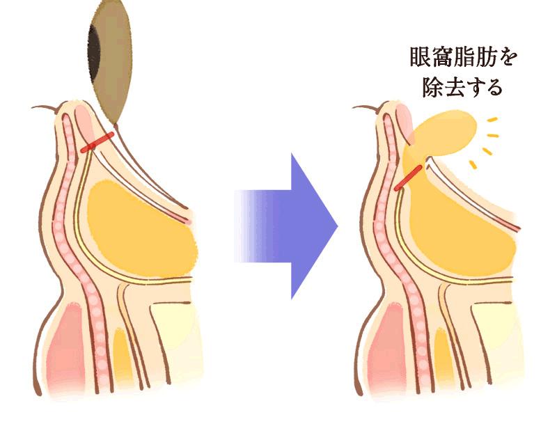 くぼみ解消に向けた眼窩脂肪の除去