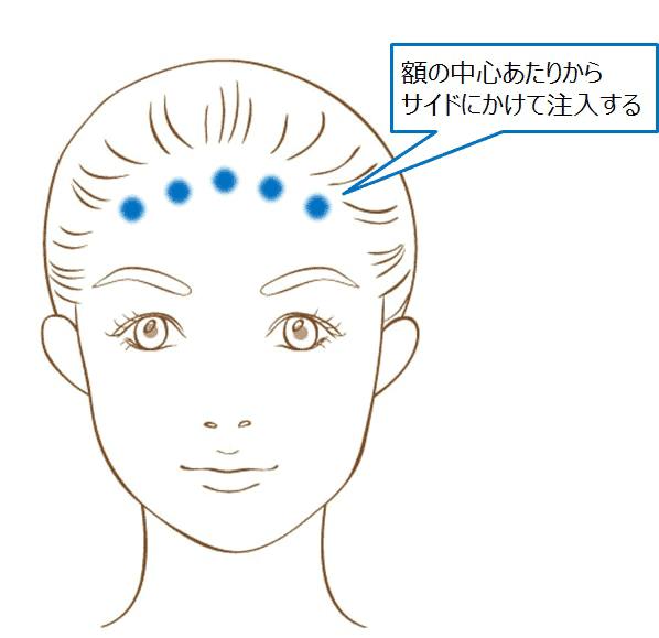 杉崎が額にボトックスを打つ位置の例