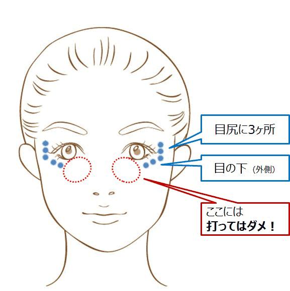 目尻と目の下のシワに対し杉崎がボトックスを打つ位置の例