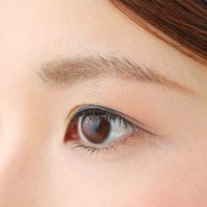 眉下切開法イメージのモニター施術