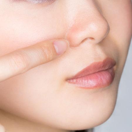 切らない小鼻縮小術イメージ