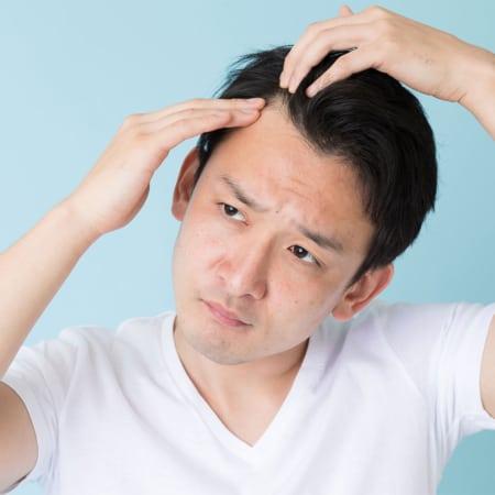 薄毛治療 一般薬イメージ