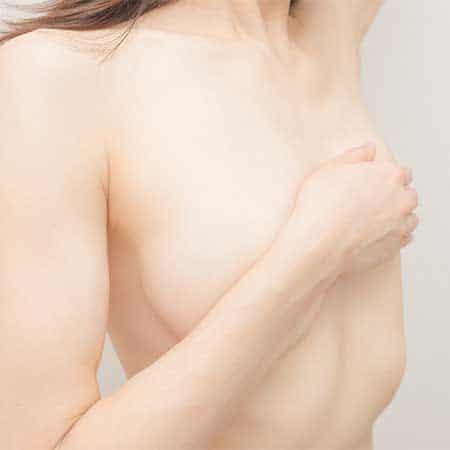乳房つり上げイメージ
