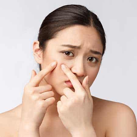 にきび・毛穴イメージ