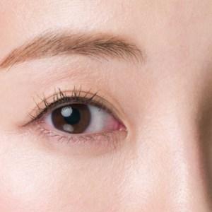 眼瞼下垂術 併用 二重術イメージのモニター施術