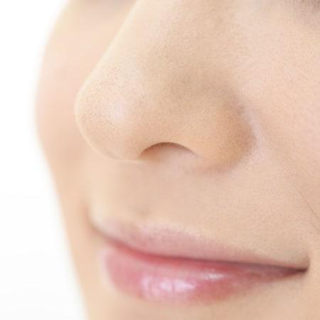 鼻尖形成術(だんご鼻解消)イメージ