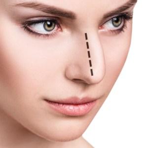 ワシ鼻修正術イメージ