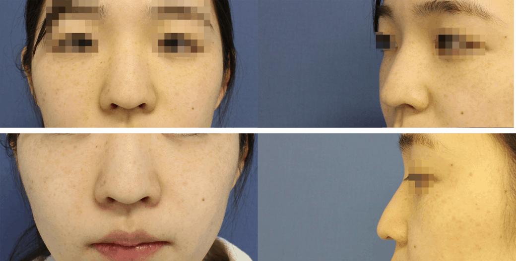 鼻の整形手術前画像