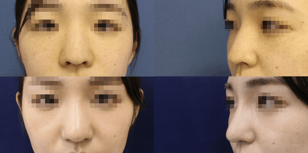鼻の整形手術前画像2