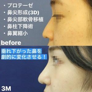 鼻整形症例写真