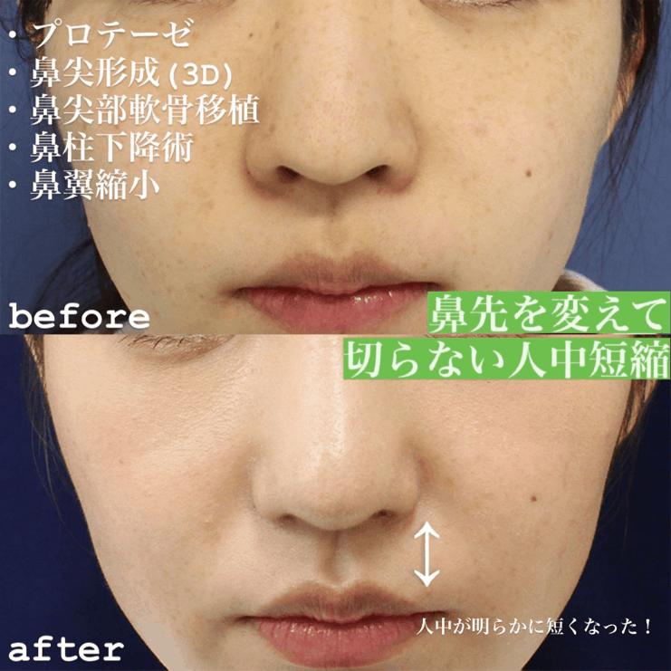 鼻の整形手術後 症例写真2