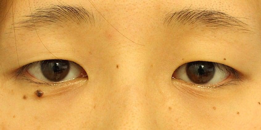 目の整形症例写真1