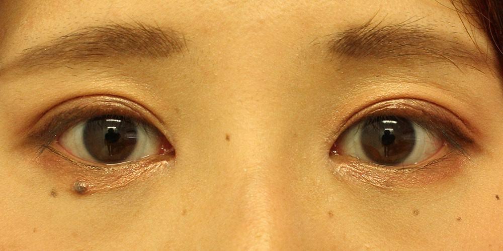 目の整形症例写真2