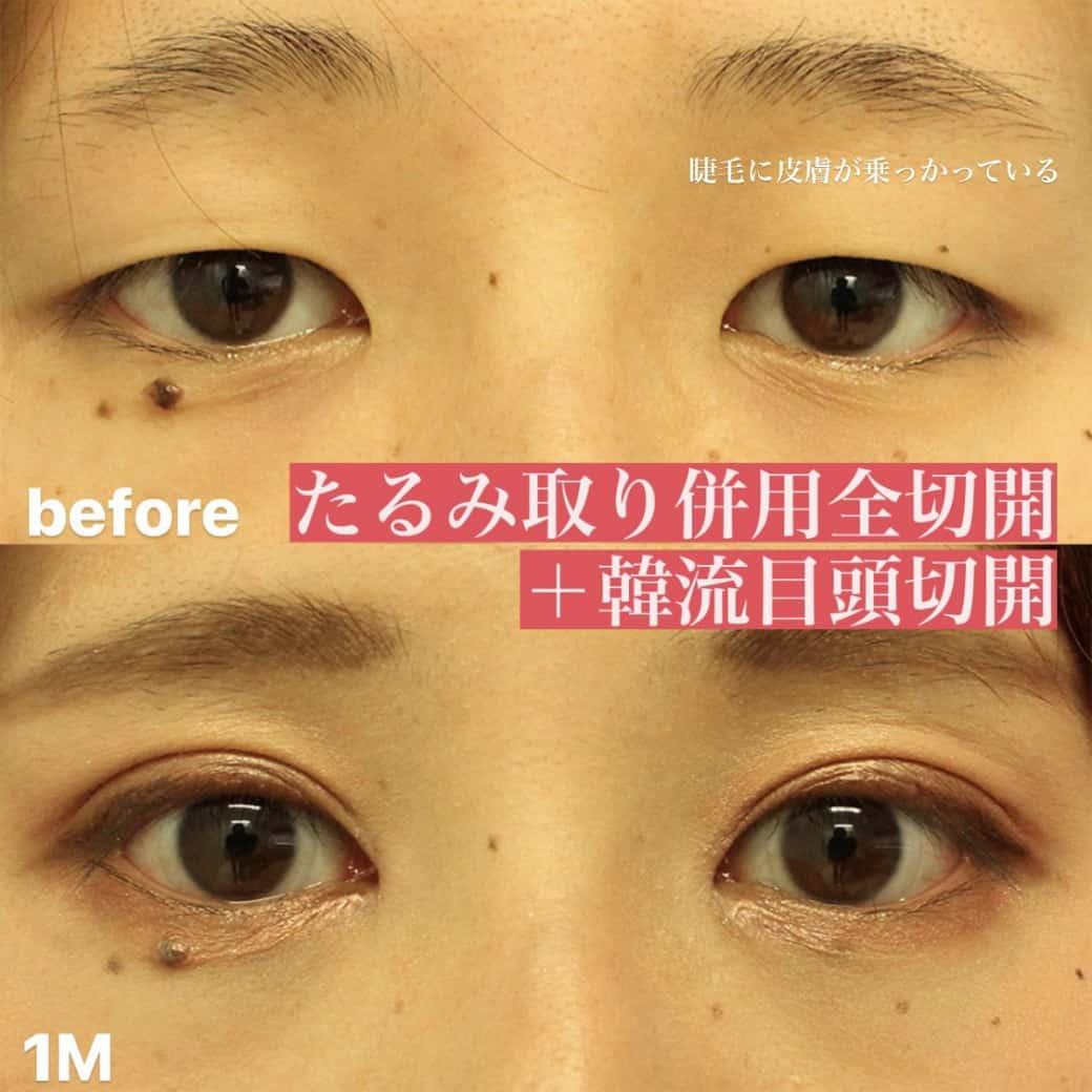 目の整形症例写真アイキャッチ