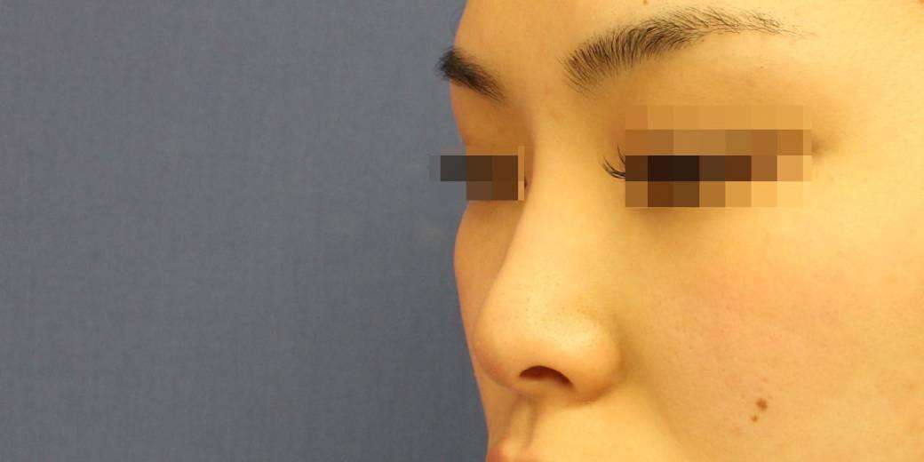 鼻整形症例写真2