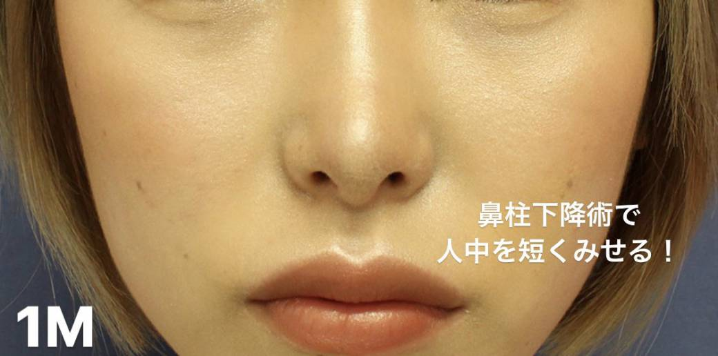 鼻整形症例写真3