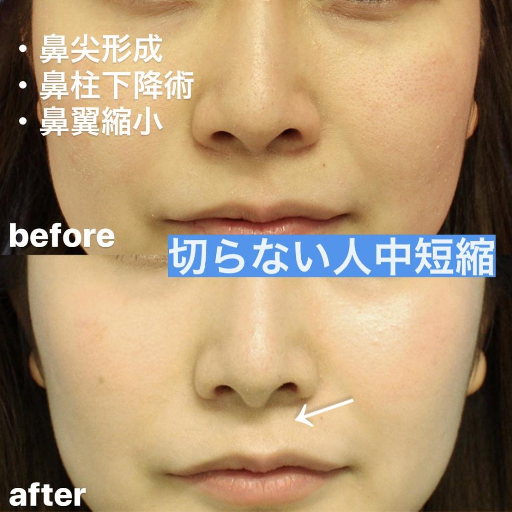 鼻尖形成術・鼻柱下降術・鼻翼縮小術 症例写真1