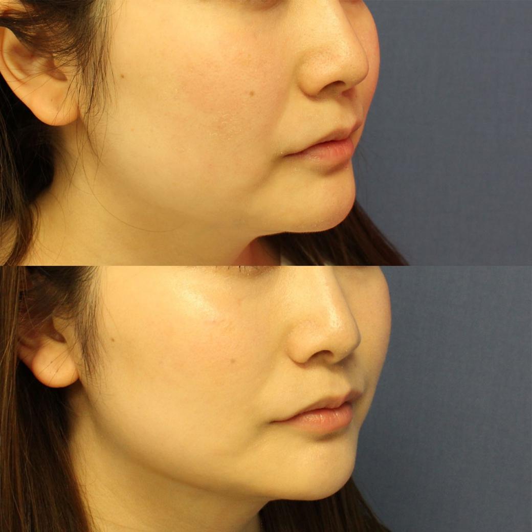 鼻尖形成術・鼻柱下降術・鼻翼縮小術 症例写真2