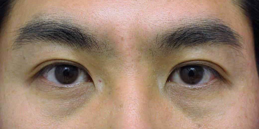 目頭切開(20代男性)- 目の整形症例アイキャッチ