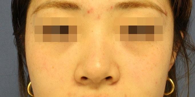 鼻の整形 術前写真