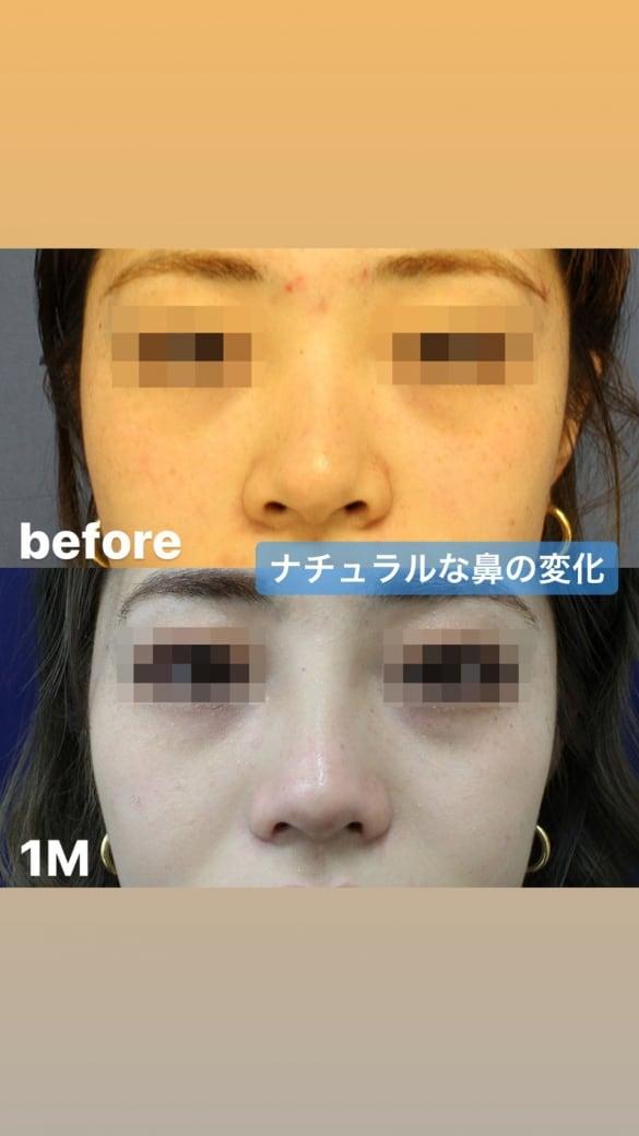 鼻の整形 術後写真