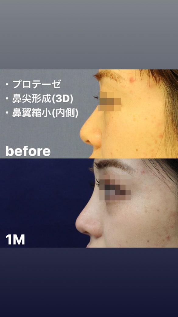 鼻の整形 術後写真2