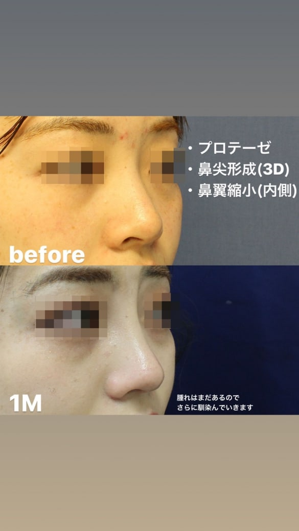 鼻の整形 術後写真3