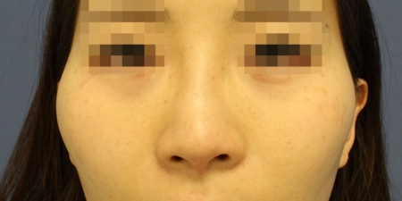 鼻尖形成術・鼻尖部軟骨移植・鼻翼縮小 術前写真1