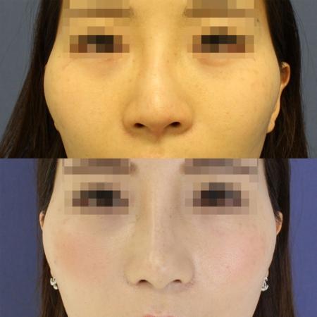 鼻尖形成術・鼻尖部軟骨移植・鼻翼縮小 症例写真1