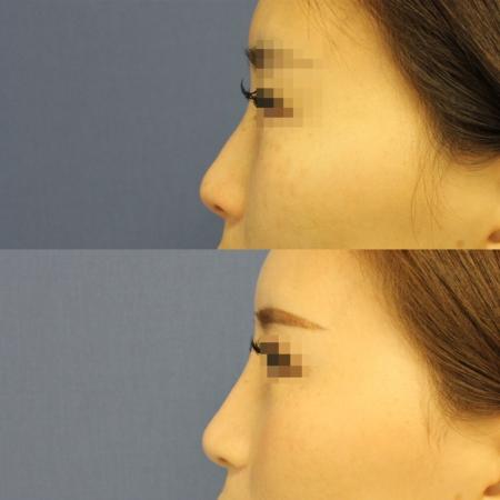 鼻尖形成術・鼻尖部軟骨移植・鼻翼縮小 症例写真2