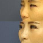 鼻尖形成術・鼻尖部軟骨移植・鼻翼縮小 症例