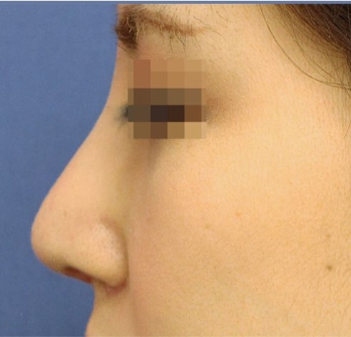 ワシ鼻削り症例写真 After